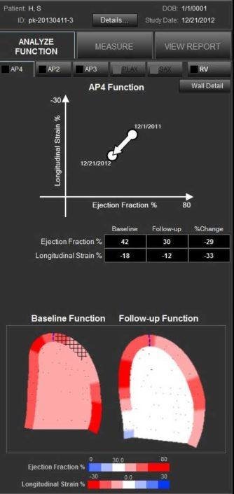 Straight forward mechanical analysis