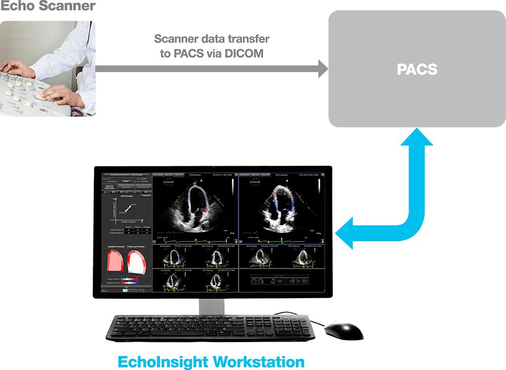 EchoInsight Standalone Workflow